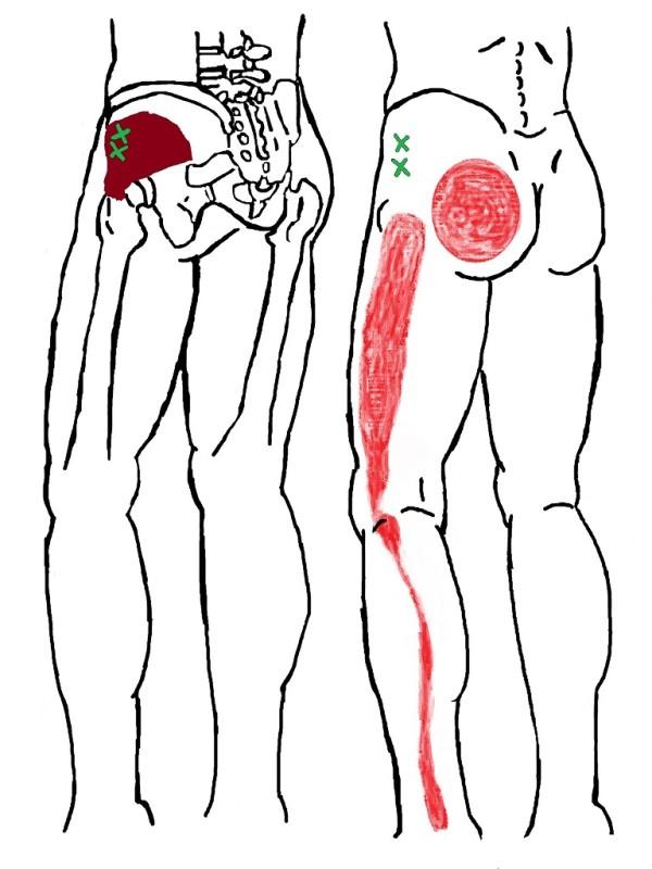 加古川市 坐骨神経痛 トリガー 小臀筋