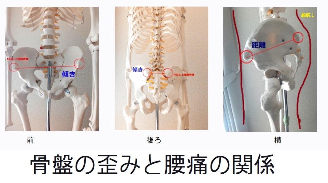 骨盤の歪みと腰痛の関係
